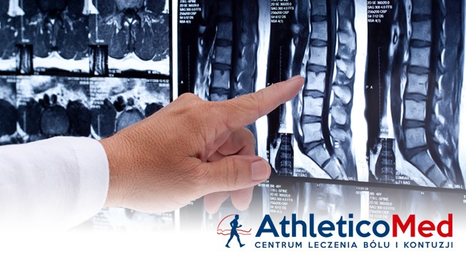 athleticomed_spine_mis